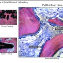 pmma-stain