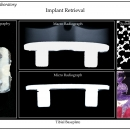 implant-retrieval-tibial-baseplate